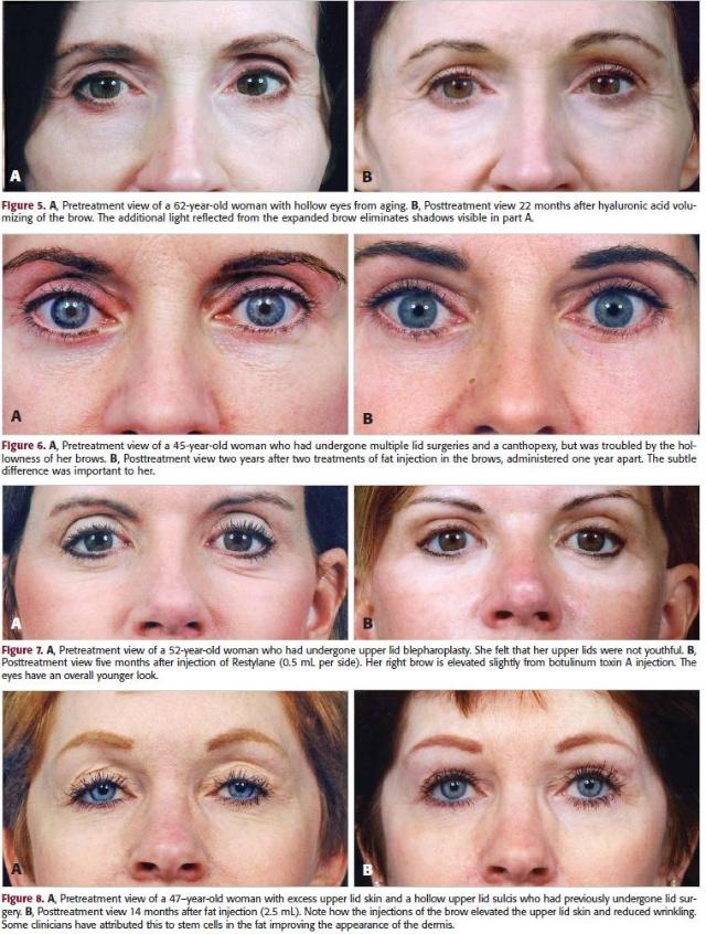眉部皮肤层次结构分析