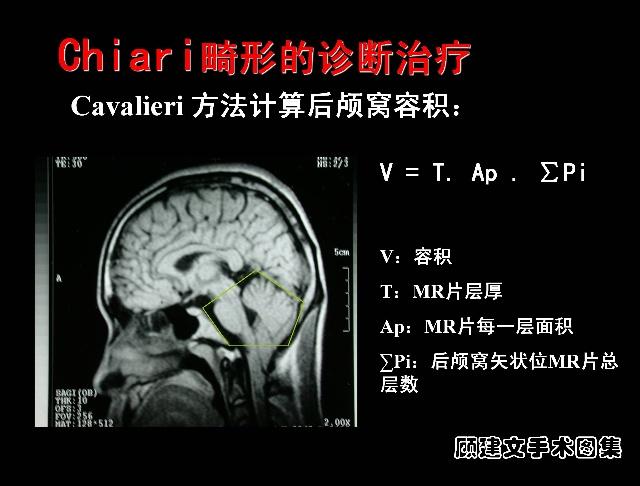 结构在胚胎期的异常发育致使小脑扁桃体疝入枕大孔内