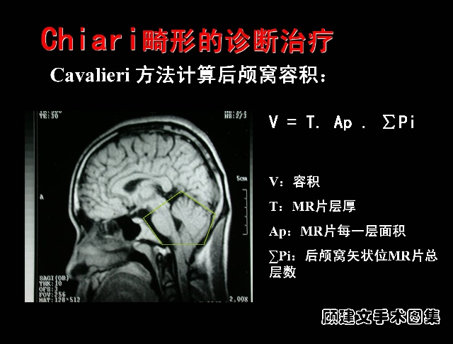 Arnold-Chiari畸形目前较公认的观点是在胚胎发育过程中枕骨发育不良,导致枕骨发育滞后,使出生后正常发育的后脑结构因后颅窝的过度拥挤而膨出到椎管内所致。研究发现病人后颅窝与后脑的容积比明显小于正常人,而后脑的体积与正常人相比无明显差别,并认为后颅窝容积明显小于正常人是该病的特征性表现。脊髓空洞是由此而引起的继发性改变,但脊髓空洞形成的机理仍不明确,并存在争议 。Arnold2Chiari畸形的主要临床表现是有颈髓受压、颅神经受累,其次是小脑受损,颅内压增高。因MR I可清楚地观察颅后窝的大小、脑脊