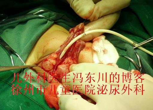 侧切痊愈图片_Ⅲ度尿道下裂严重吗?(附手术全程图)-小儿外科医生冯东川的 ...