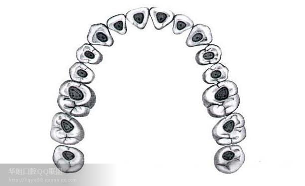 开髓窝洞外形为钝圆角的长方形(四根管)或圆三角形(三根管),位于咬合